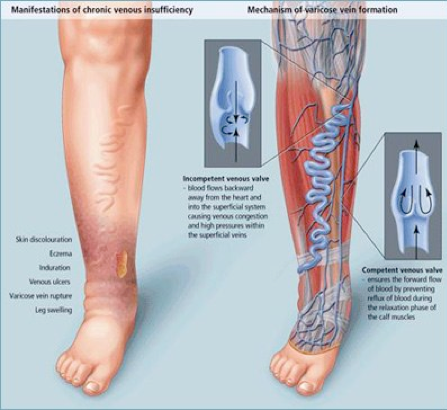 Varicose Veins: More Than a Cosmetic Concern - Health